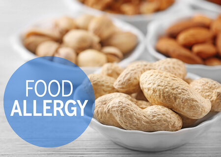 Food Allergies treated at Whole Health Houston